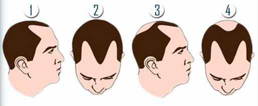 Hair Transplant Wakefield